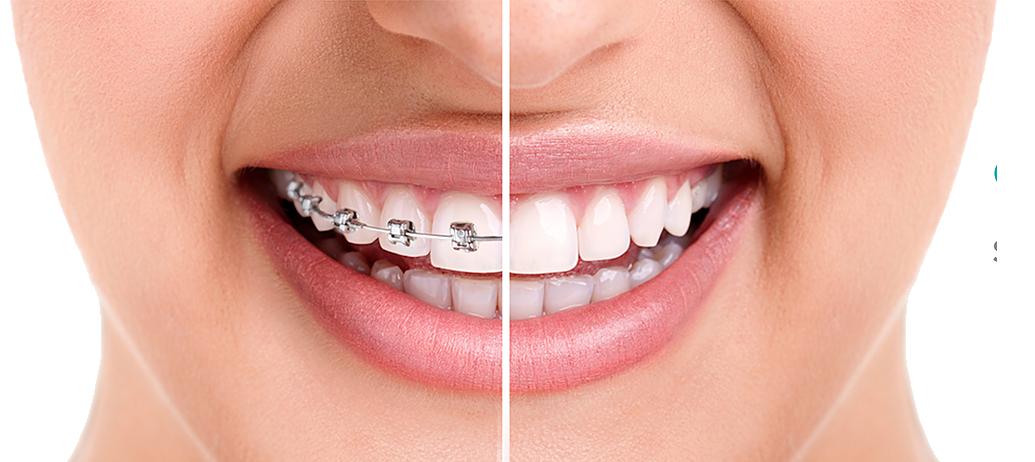 Ortodoncia en Majadahonda