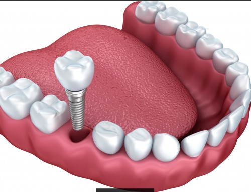 Técnicas de regeneración ósea para la colocación de implantes