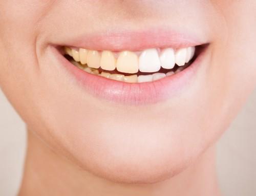 Causas de las manchas en los dientes y cómo ponerles solución