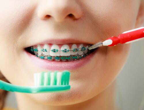 Limpieza de ortodoncia: ¡La guía definitiva para su mantenimiento!